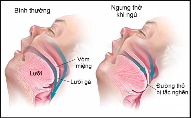 Hội Chứng Ngưng Thở Khi Ngủ Có Nguy Hiểm Không?